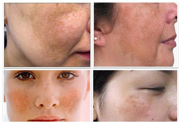 Nám da ở vùng mặt